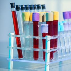 HGH Deficiency Blood Testing